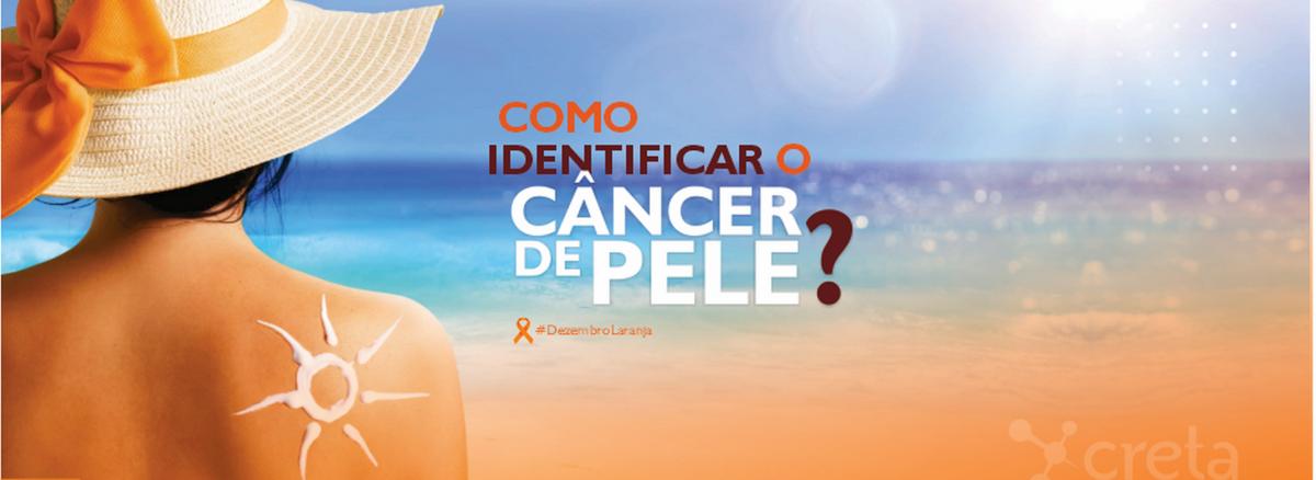 Previna-se! Conheça os sinais do câncer de pele e fique atento.