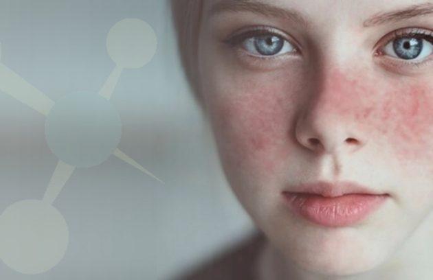 lupus-eritematoso-sistemico-entenda-mais-sobre-a-doenca