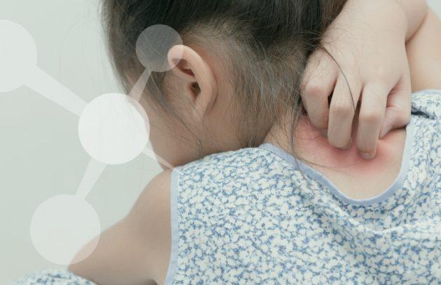 doença inflamatória crônica